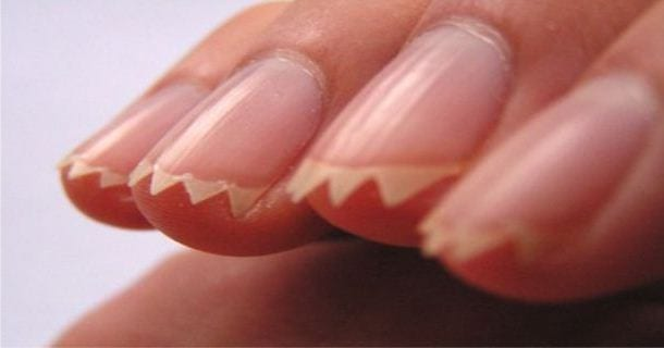 Если грызть ногти какие они будут фото