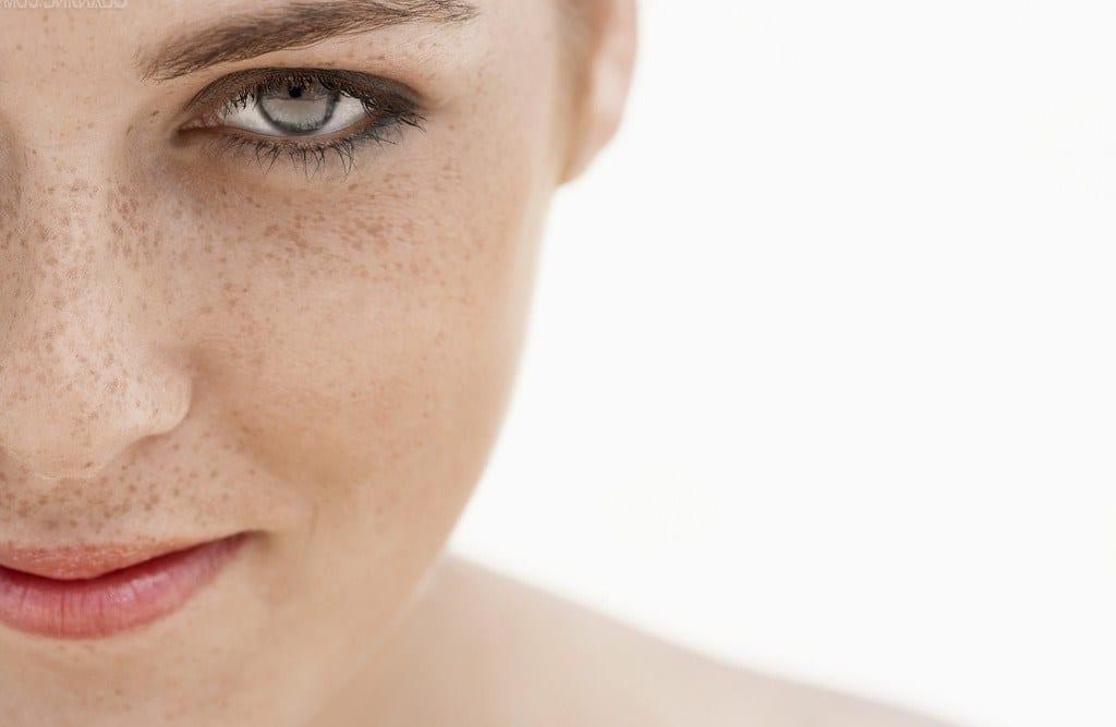От чего пигментные пятна на лице под глазами