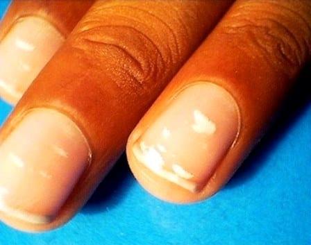 От чего на руках коричневые ногти