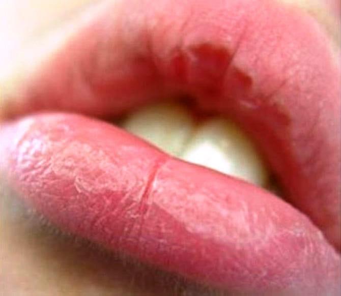 Сухость губ
