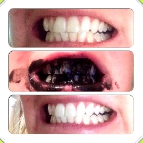 Можно ли отбеливать зубы до 18