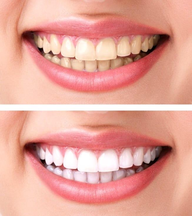 отбелить зубы вредно