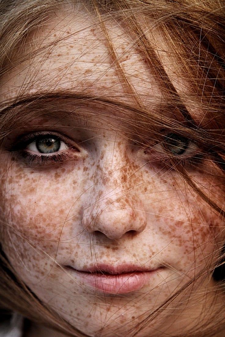Тёмные пятна шероховатые на лице