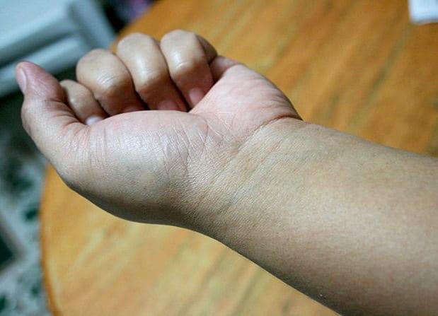 Лучше всего сделать пробное тату на руке
