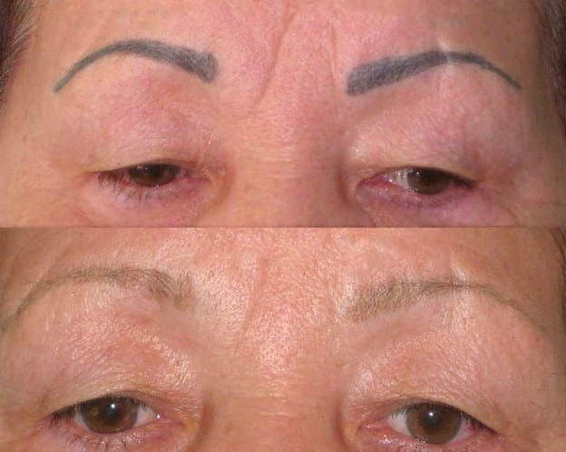 Лазерное удаление перманентного макияжа
