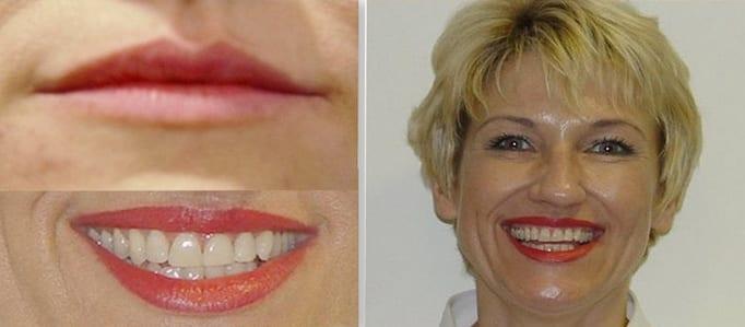 Процедуры для лица и губ